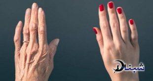 جوان ماندن دست ها با روش سریع و جوان سازی پوست