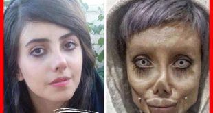سحر تبر کیست؟ |بیوگرافی سحر تبر و عکس قبل و بعد از عمل سحر تبر +پیچ اینستاگرام