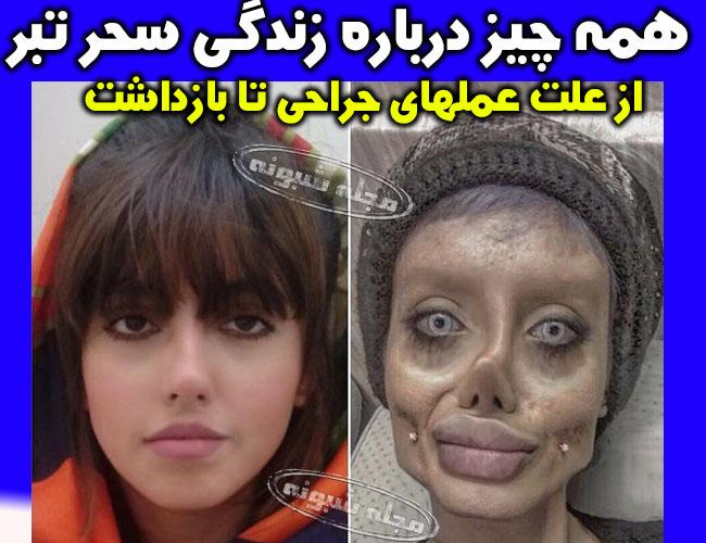 سحر تبر بازداشت | علت دستگیری سحر تبر و عکس قبل و بعد از عمل جراحی