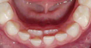 راه حل رویش دندان دائمی کودکان پشت دندان شیری