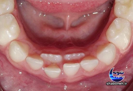 راه حل رویش دندان دائمی کودکان پشت دندان شیری کودکان