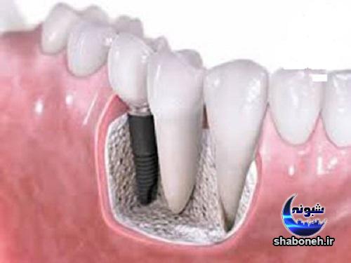 ایمپلنت دندانی و چه نوع ایمپلنت امن تر است