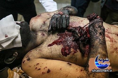 حوادث چهارشنبه سوری عکس های دلخراش از قربانیان