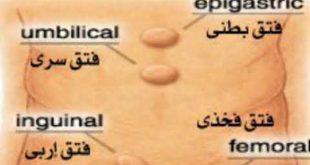 انواع فتق و علائم و راه تشخیص فتق + نکات مهم بعد از جراحی