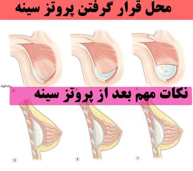 پروتز سینه و معایب و مزایای پروتز سینه + قبل از پروتز سینه بخوانید
