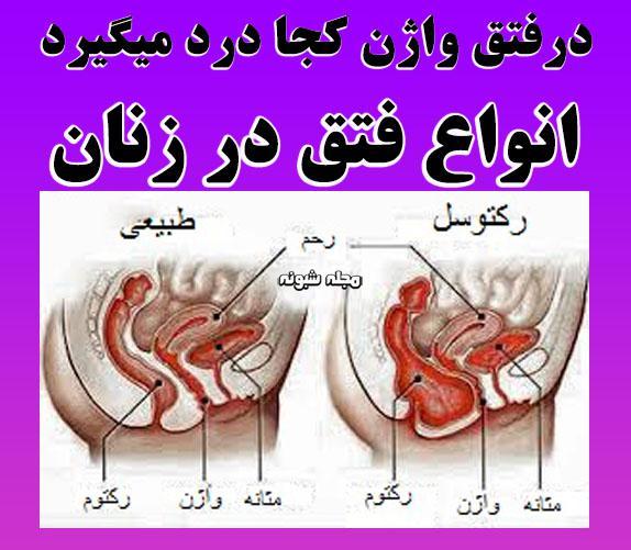 فتق واژن در زنان و انواع فتق در زنان + فتق بارداری و علائم آن
