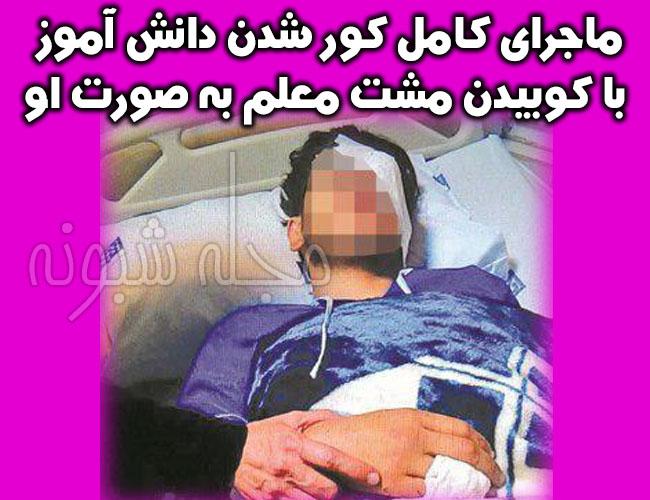 شت محکم معلم تهرانی باعث کور شدن آرش ۱۸ ساله در مدرسه شد