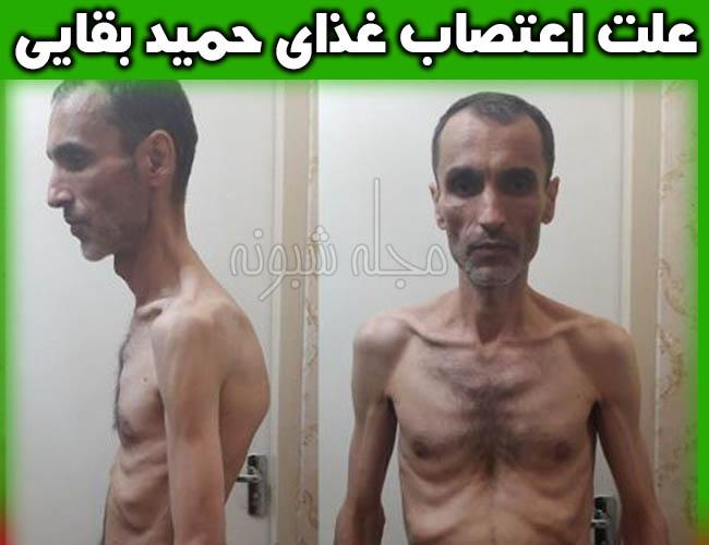 آخرین وضعیت جسمانی حمید بقایی