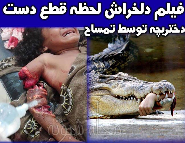 حمله تمساح به دختر بچه در شهر سرباز +عکس قطع دست دختربچه توسط تمساح