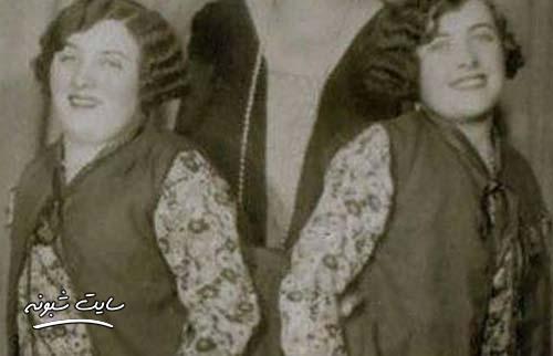خواهران دوقلوی بهم چسبیده که ازدواج کردند (مارگارت و مری گیبس)