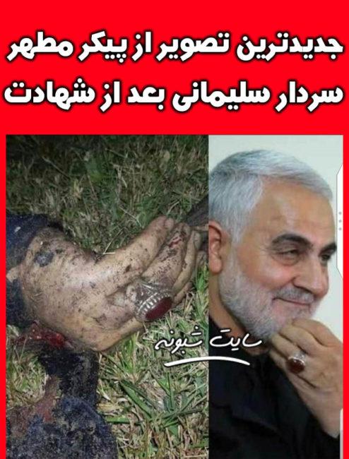 پیکر سردار سلیمانی بعد از شهادت