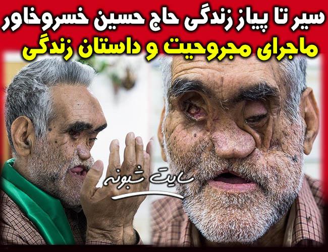 زندگینامه حاج حسین خسروخاور جانباز 70 درصد +ماجرای مجروح شدن