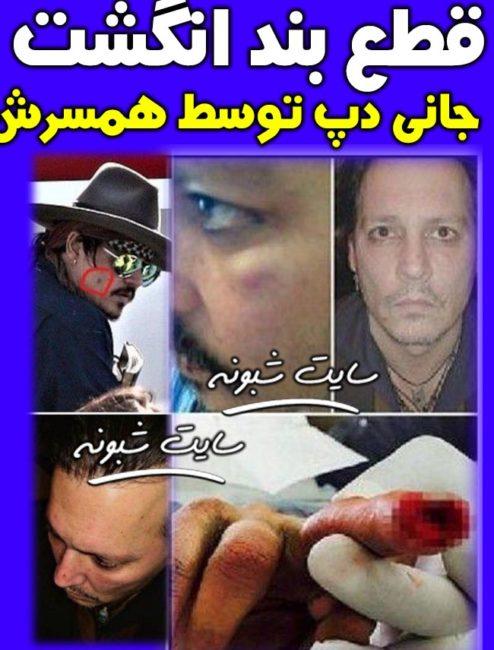 زخمی کردن و قطع بند انگشت جانی دپ توسط امبر هرد همسرش +خشونت