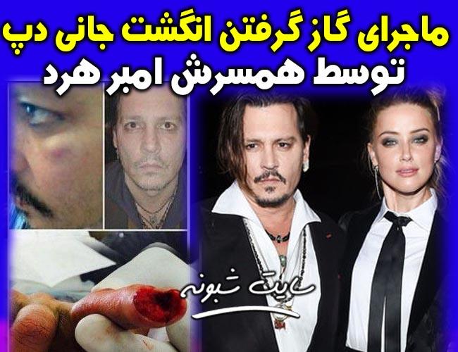 گاز گرفتن انگشت جانی دپ توسط امبر هرد همسرش + قطع بند انگشت جانی دپ