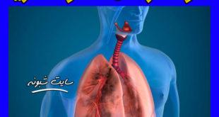 درمان عفونت ریه ناشی از ویروس کرونا + گیاهان دارویی درمان عفونت ریه