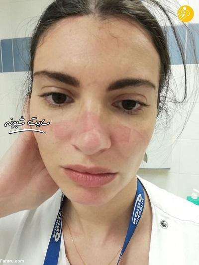 چهره کبود دکتر و پرستار بر از اثر ماسک