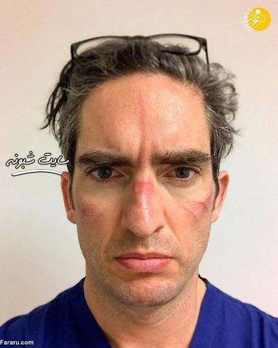 چهره کبود دکتر و پرستار