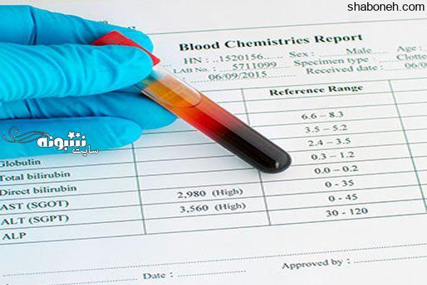 ALT در آزمایش خون چیست؟ معنی آلانین آمینوترانسفراز خون