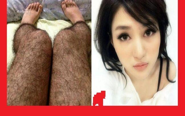 جوراب شلواری پوشیده از مو برای جلوگیری از تجاوز