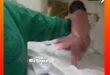 نوزادی که بعد از زایمان راه رفت (فیلم) و علت