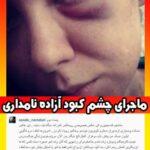 کتک زدن آزاده نامداری توسط فرزاد حسنی و چشم کبود آزاده نامداری