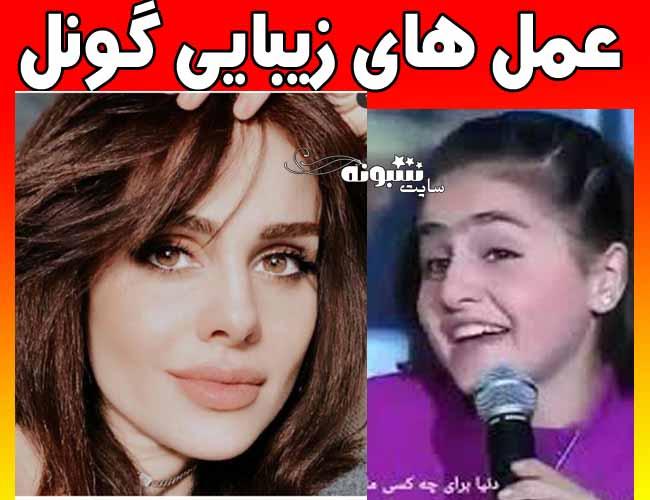 عمل زیبایی و تغییر چهره گونل خواننده ترکیه + جزئیات
