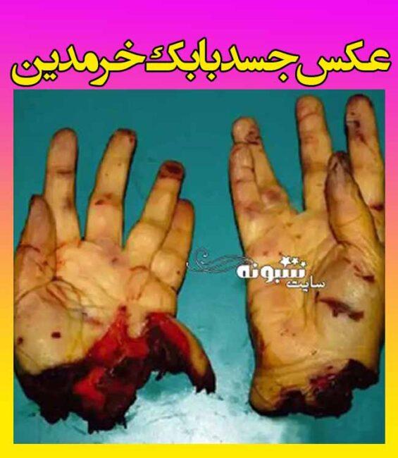 عکس جسد بابک خرمدین کارگردان سینما و عکس جسد قطعه قطعه شده بابک خرمدین