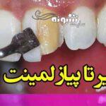 عوارض لمینت دندان چیست اول این مطلب را بخوانید بعد اقدام کنید